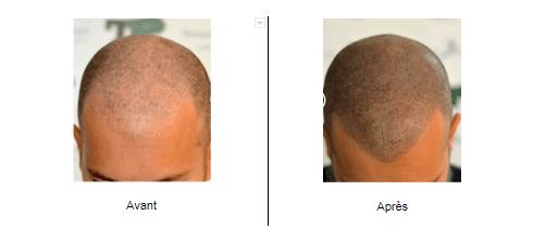 Dermopigmentation sur cheveux ras