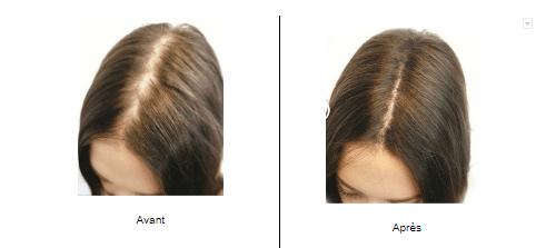 Dermopigmentation sur cheveux non rasés