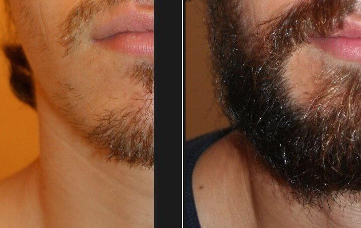Correction barbe clairsemée par le docteur Eric Bouhanna