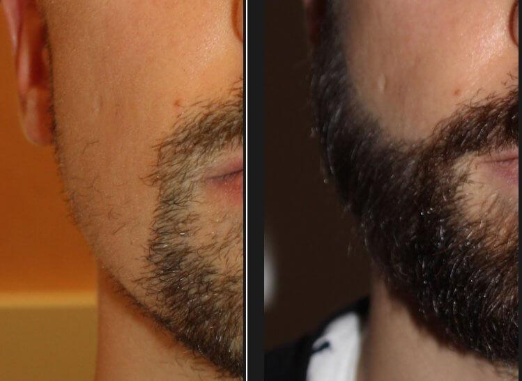 Correction forme de la barbe par le docteur Eric Bouhanna