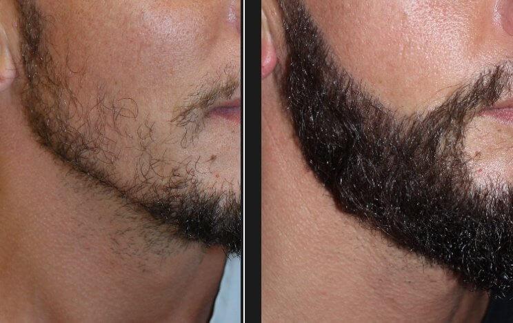 Correction barbe inégale et inhomogène par le docteur Eric Bouhanna