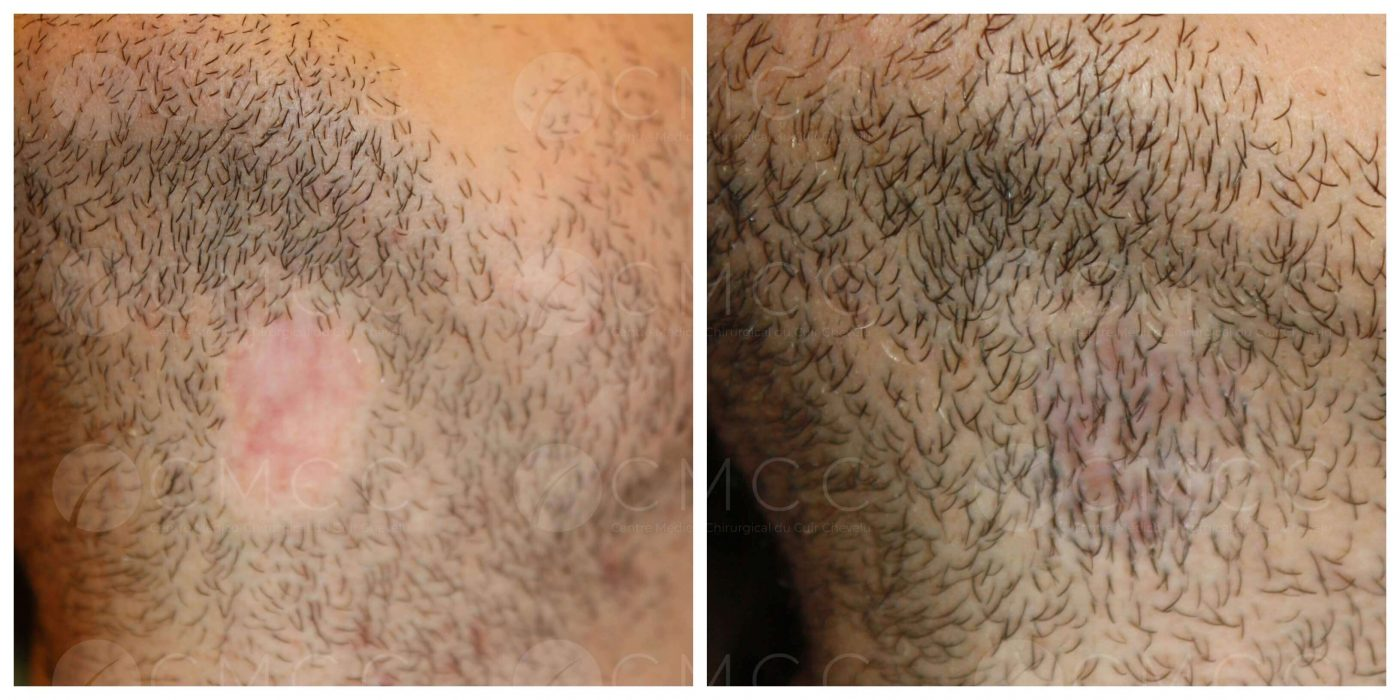 Correction cicatrice de barbe par le docteur Eric Bouhanna