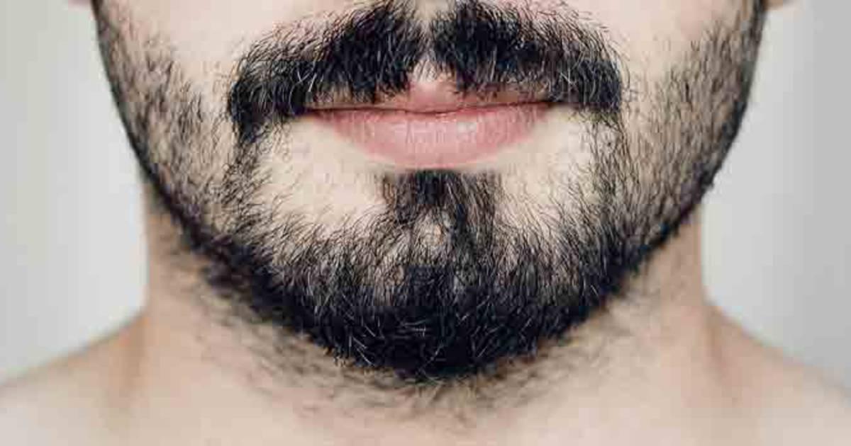Greffe barbe/moustache