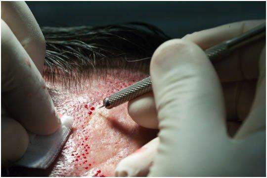 injection des greffons dans les zones dégarnies du cuir chevelu