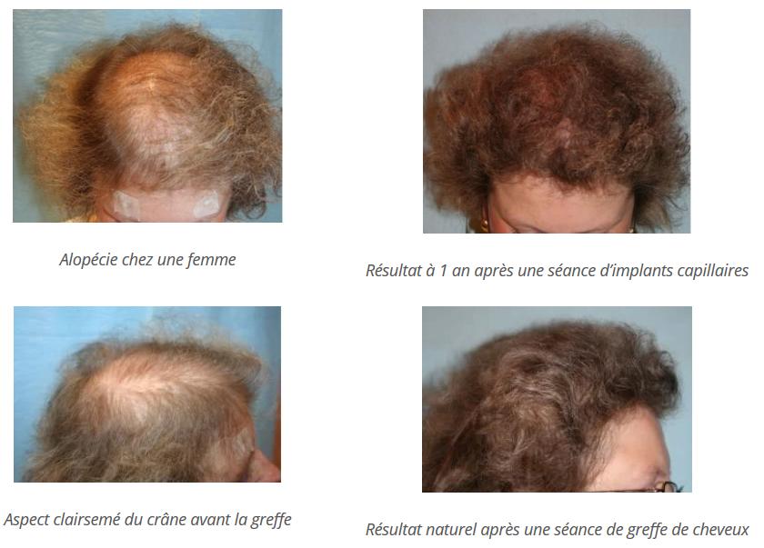Résultat de l'alopécie androgénétique chez une femme