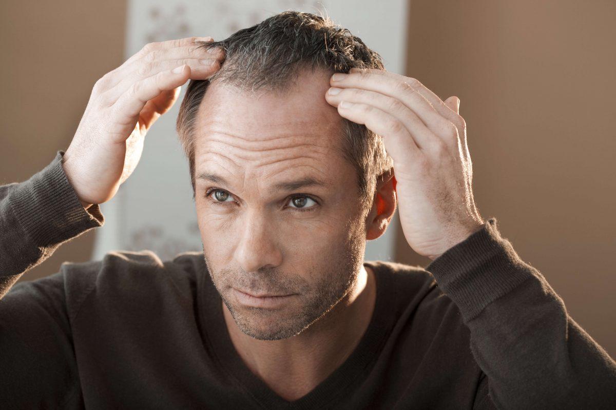 Greffe de cheveux de type européen