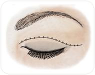 Cicatrice de blépharoplastie supérieure