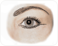 Cicatrice de blépharoplastie inférieure