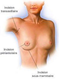 Localisation des cicatrices pour prothèses mammaires