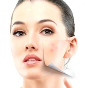 Dermabrasion, médecine esthétique du visage par le docteur Eric Bouhanna