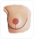 Cicatrice de réduction du sein péri-aréolaire et verticale