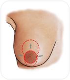 Réduction du sein en retirant l'excès de peau autour de l'aréole et à la partie inférieure du sein