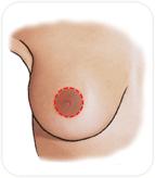 Cicatrice péri-aréolaire du sein