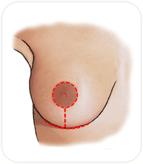 Cicatrice de réduction mammaire autour de l'aréole, verticale et dans le sillon sous mammaire
