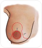 Réduction du sein en retirant largement l'excès de peau autour de l'aréole et sous le sein