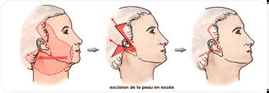 Technique du lifting cervico-facial