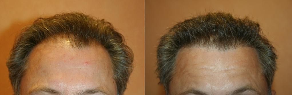 Résultat greffe de cheveux avant/après Paris