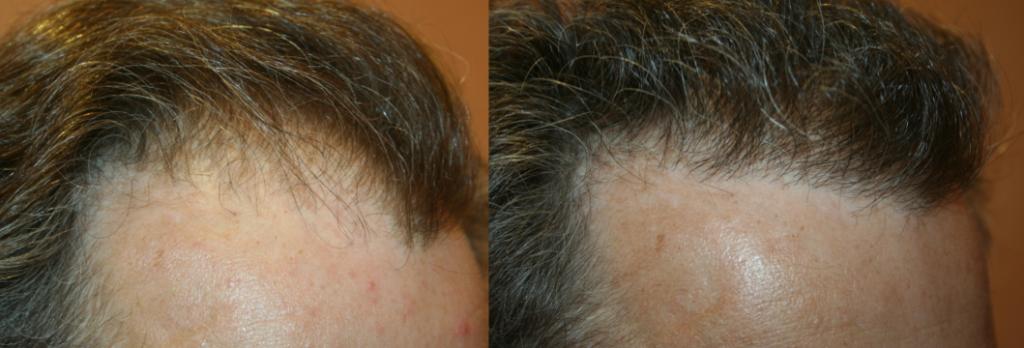 Résultat implants cheveux avant après à Paris