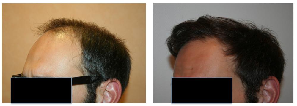 Résultat avant/après une greffe de cheveux à Paris