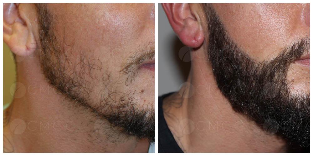 Résultat avant après greffe de barbe et moustache par le Dr Eric Bouhanna