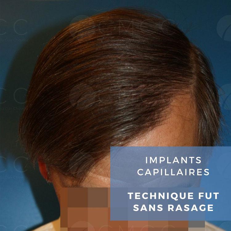 Technique FUT sans rasage