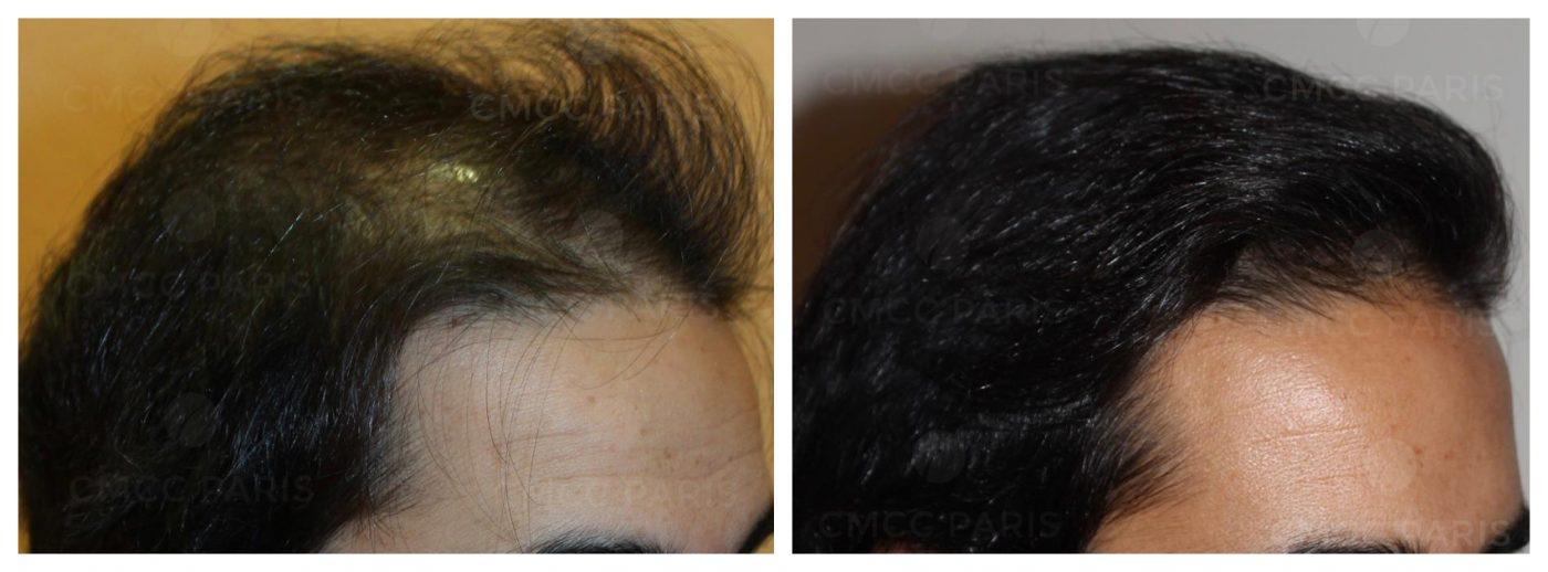 Résultat d'une greffe de cheveux FUE réalisée par le Docteur Eric Bouhanna