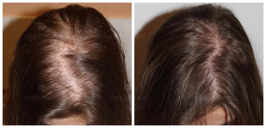 implantation de 1000 cheveux femme