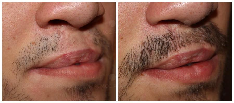 implantation de 110 poils de moustache