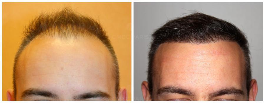 implantation cheveux