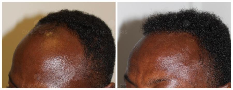 implantation 1200 cheveux