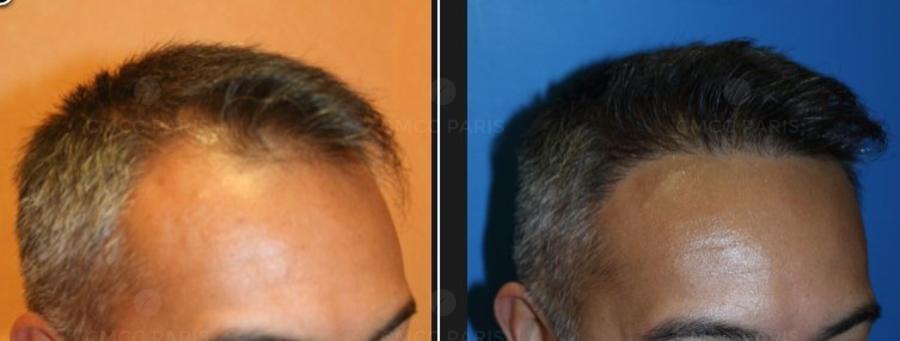 implantation de 190 cheveux