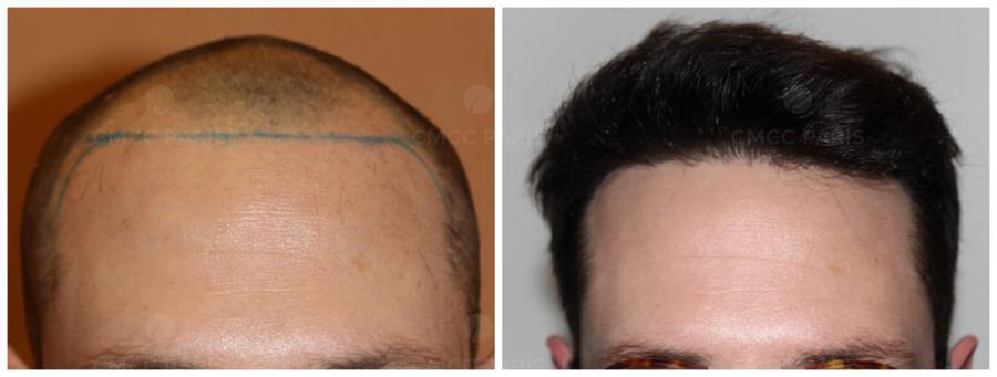 implantation 1800 cheveux