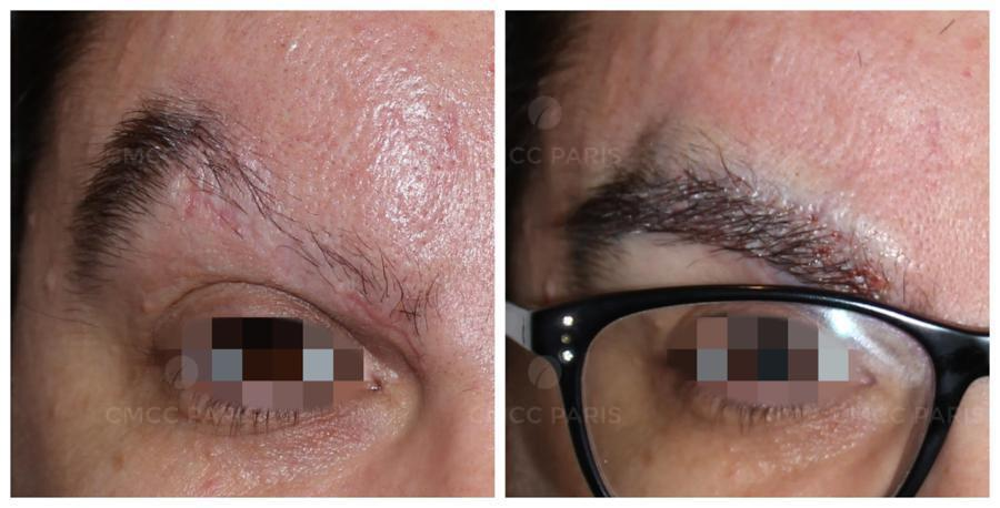 implantation de 190 poils de sourcils