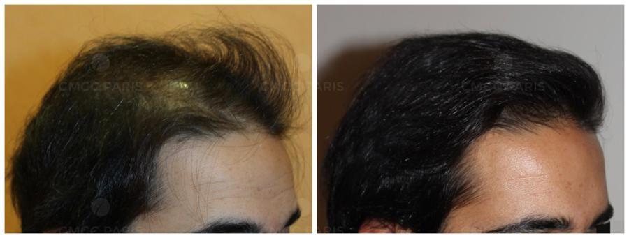 implantation de 2000 cheveux