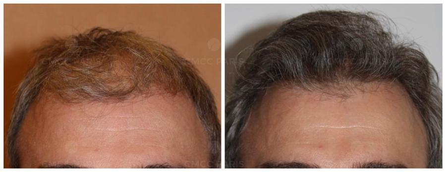 implantation 2000 cheveux