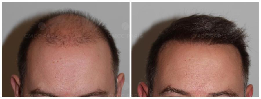 implantation 2050 cheveux