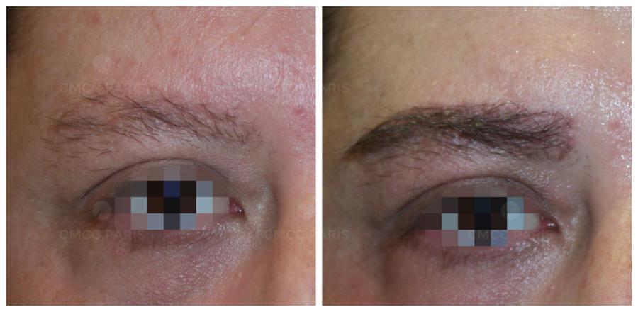 implantation de 210 poils de sourcils