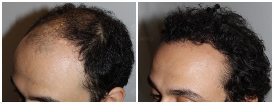 implantation de 2100 chveux coté