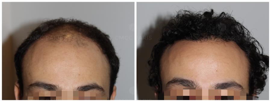 implantation de 2100 cheveux