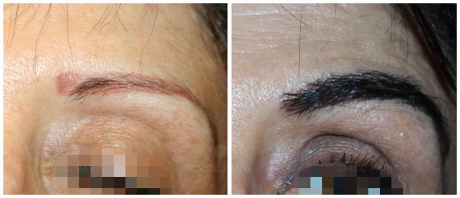 Greffe de 220 poils de sourcils sur une femme