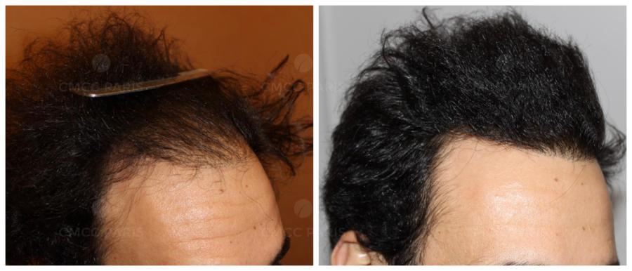 implantation 2210 cheveux