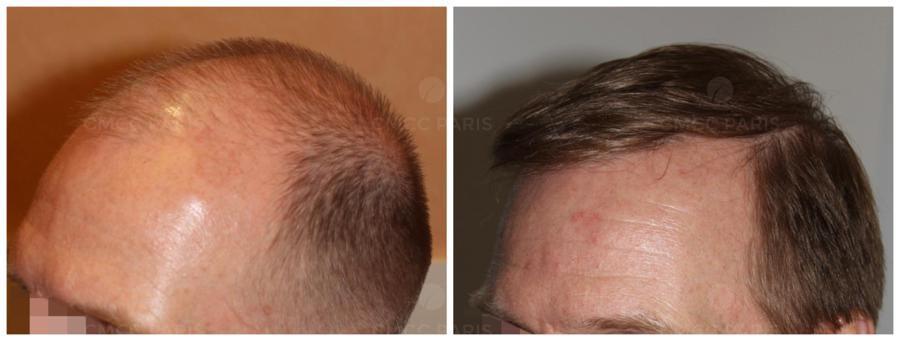 Implantation de 2 500 cheveux au niveau de la ligne frontale et du vertex