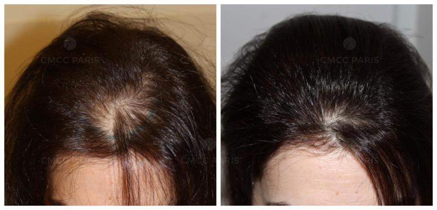 implantation 800 cheveux