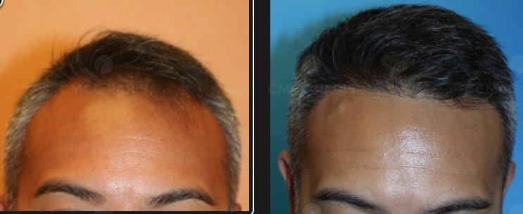 implantation de cheveux