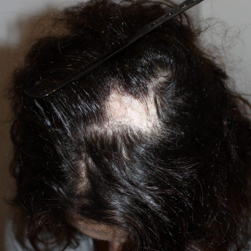 Alopécie cicatricielle prise en charge par le Dr Eric Bouhanna