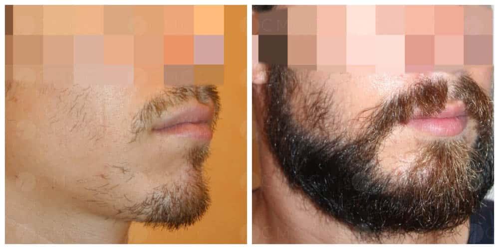 greffe de barbe - implantation 1500 poils