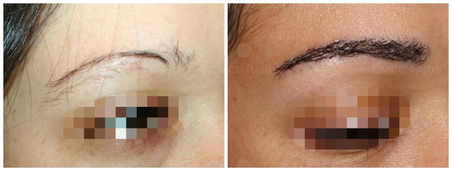 greffe de sourcils - implantation de 200 poils