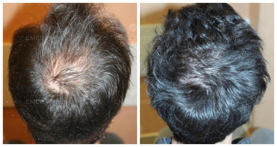 greffe de cheveux - implantation de 2100 poils