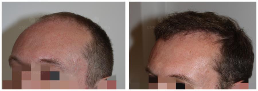 greffe de cheveux - implantation de 2300 poils