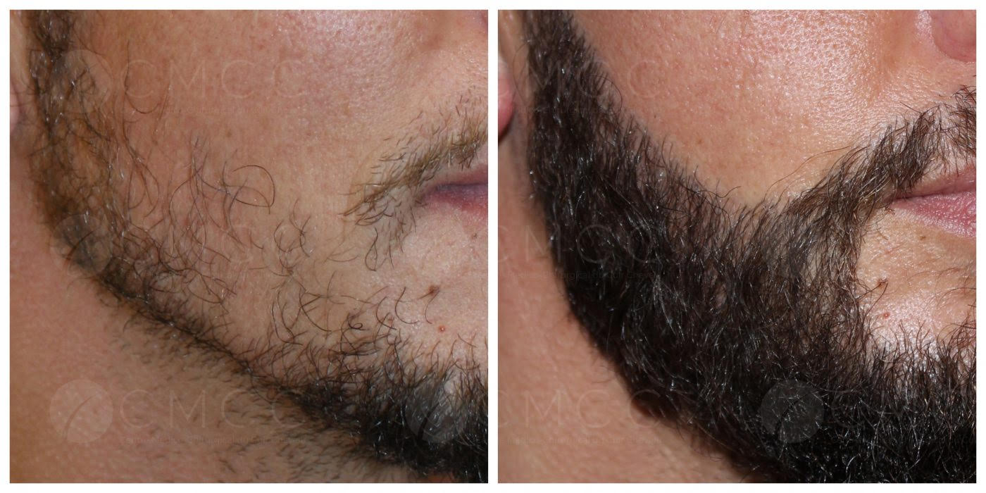 greffe de barbe - implantation 600 poils